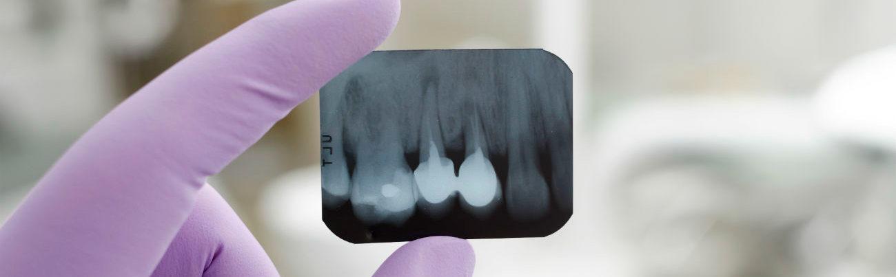 Прицельная рентгенография