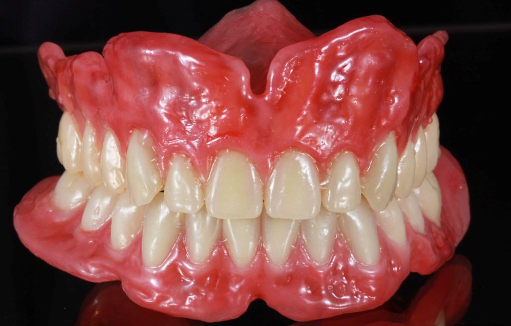 Полный съемный протез зубов